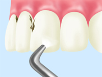 PMTC(Professional Mechanical Tooth Cleaning)